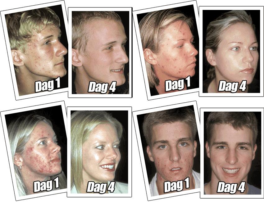 acne-voor-na-groep