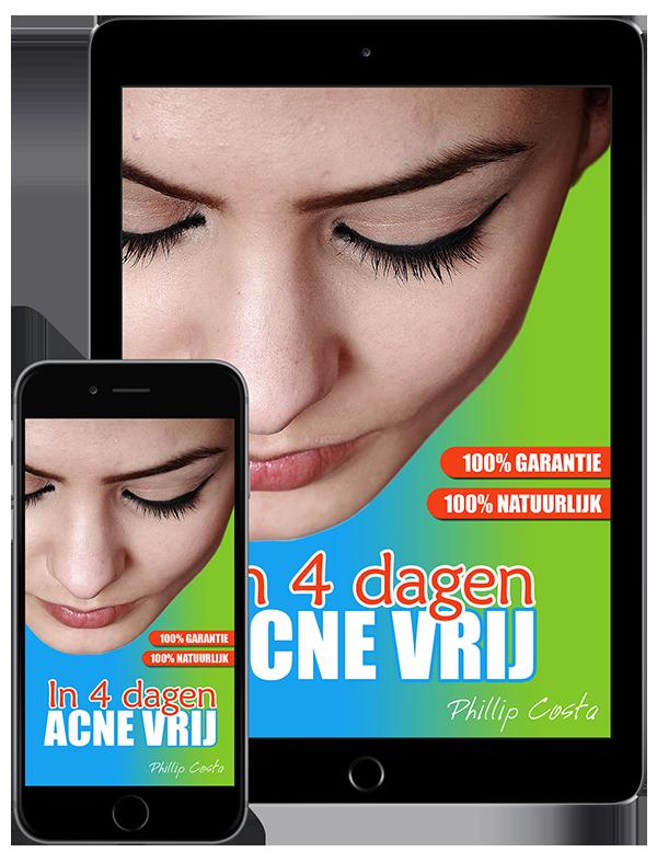 ebook-nooit-meer-acne-methode-review